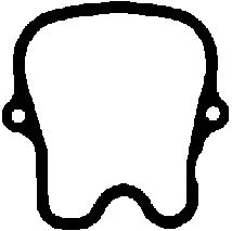 Прокладка клапанной крышки MERCEDES-BENZ (МЕРСЕДЕС-БЕНЦ) OM441/OM442 (1CYL) (пр-во Elring) фото, цена